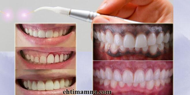 د. نجوان: استخدامات الليزر في طب الأسنان وماذا يحدث أثناء العلاج
